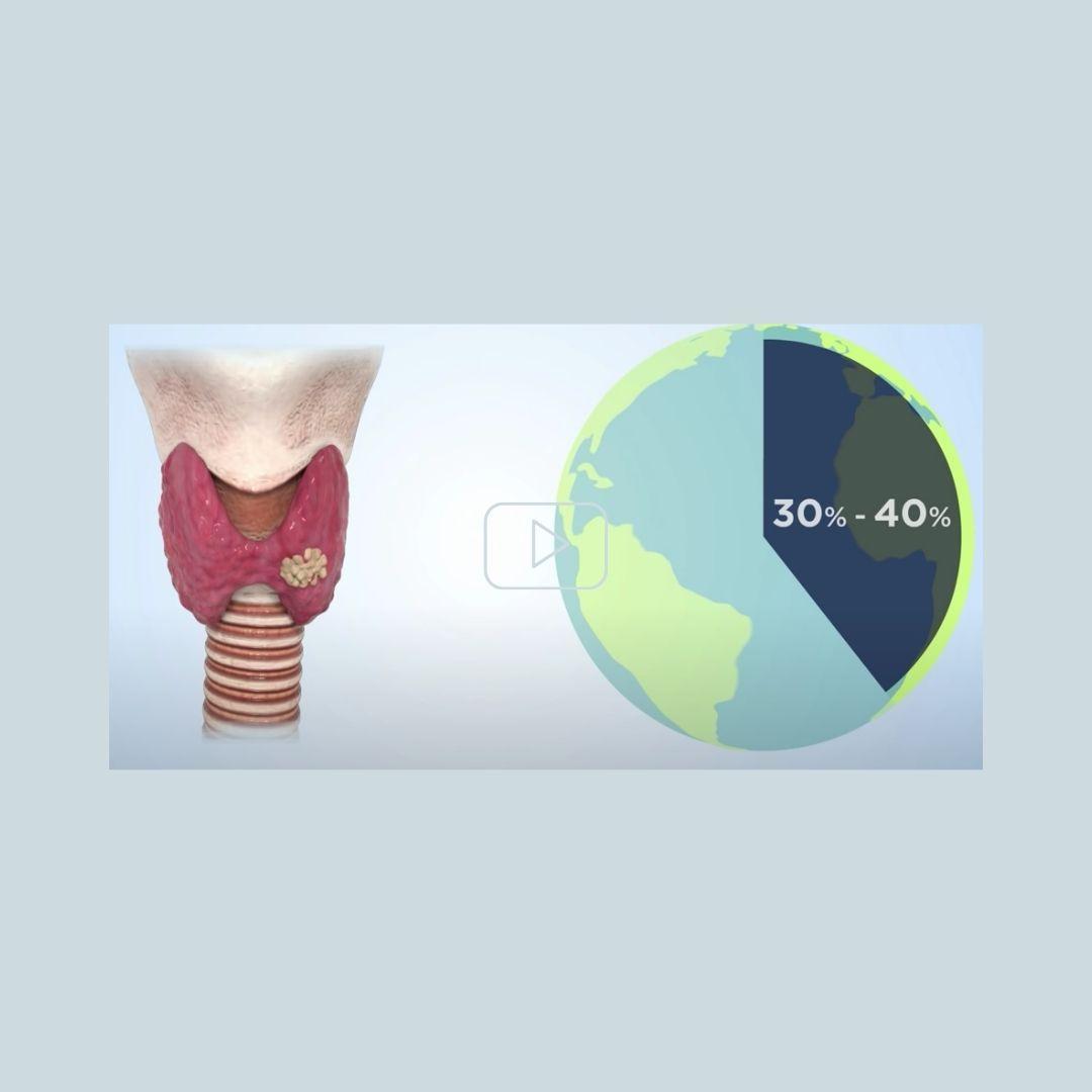 Cambiando el mundo con ThyroidPrint